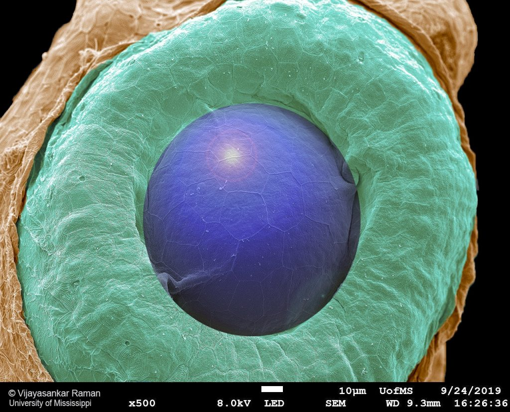 SEM image of a developing eye of a 18 hrs-old zebrafish embryo