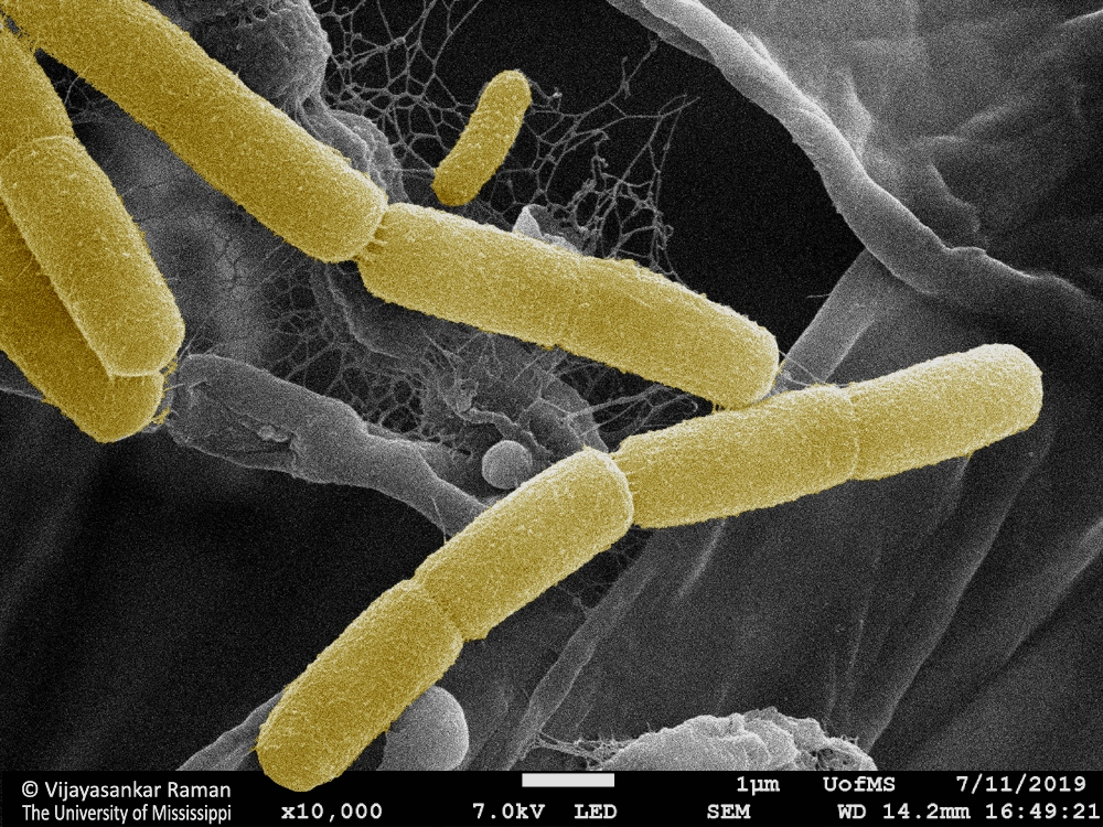 3-Bacteria-found-in-a-Tinospora-sample